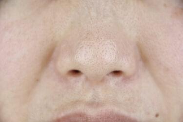 毛穴だらけの肌になる前に!30代メンズの毛穴悩みが消えない2大原因とは?